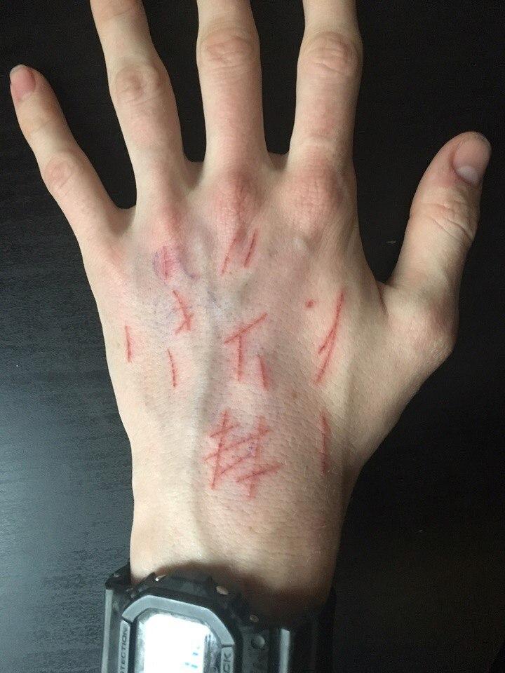 фото порезанные мужчин руки